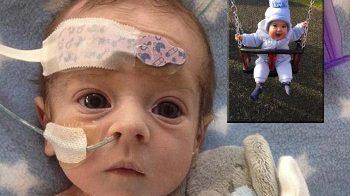 Bayi Yang Mengidap Penyakit HLHS
